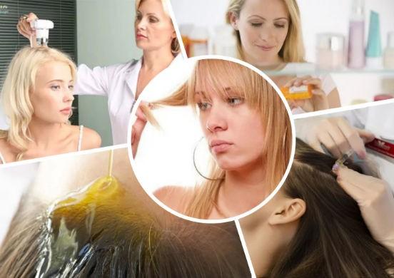Как остановить выпадение волос при гормональном сбое
