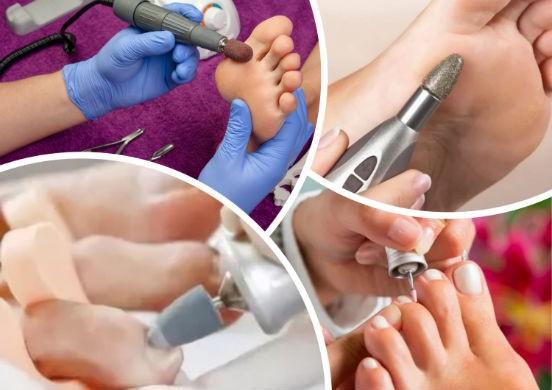 Как сделать аппаратный педикюр самостоятельно, чтобы привести свои ножки в порядок?