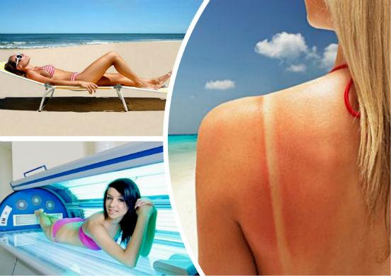 ТОП-17 способов лечения солнечного ожога в домашних условиях или как восстановить кожу после загара