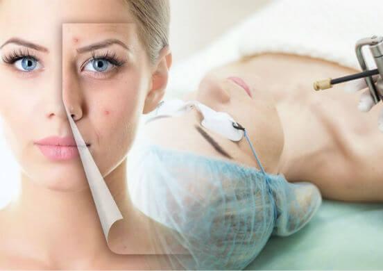 """Криотерапия для лица - """"холодная"""" процедура, способная улучшить состояние кожных покровов"""