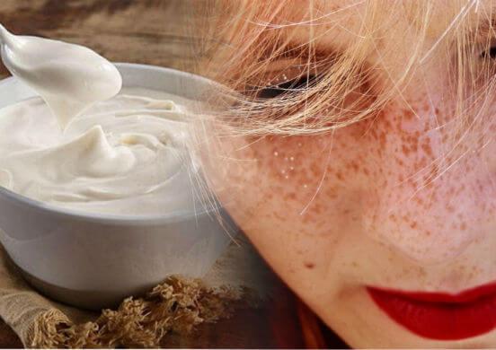ТОП-10 домашних способов избавления от веснушек или как получить идеальную кожу